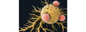Tumor cells versus the immune system: the battle for supremacy